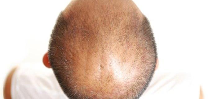 جدیدترین روش کاشت مو