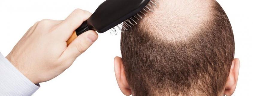 راه های طبیعی جلوگیری از ریزش کاشت مو