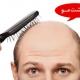نظرات درمورد کاشت مو